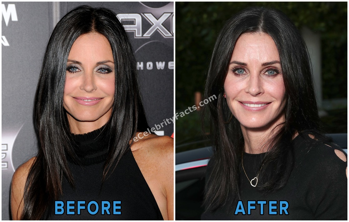 Before after image of Courtney Cox. She is smiling in both picture.