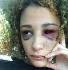 Geneva Ayala with her bloodshot blue eyes