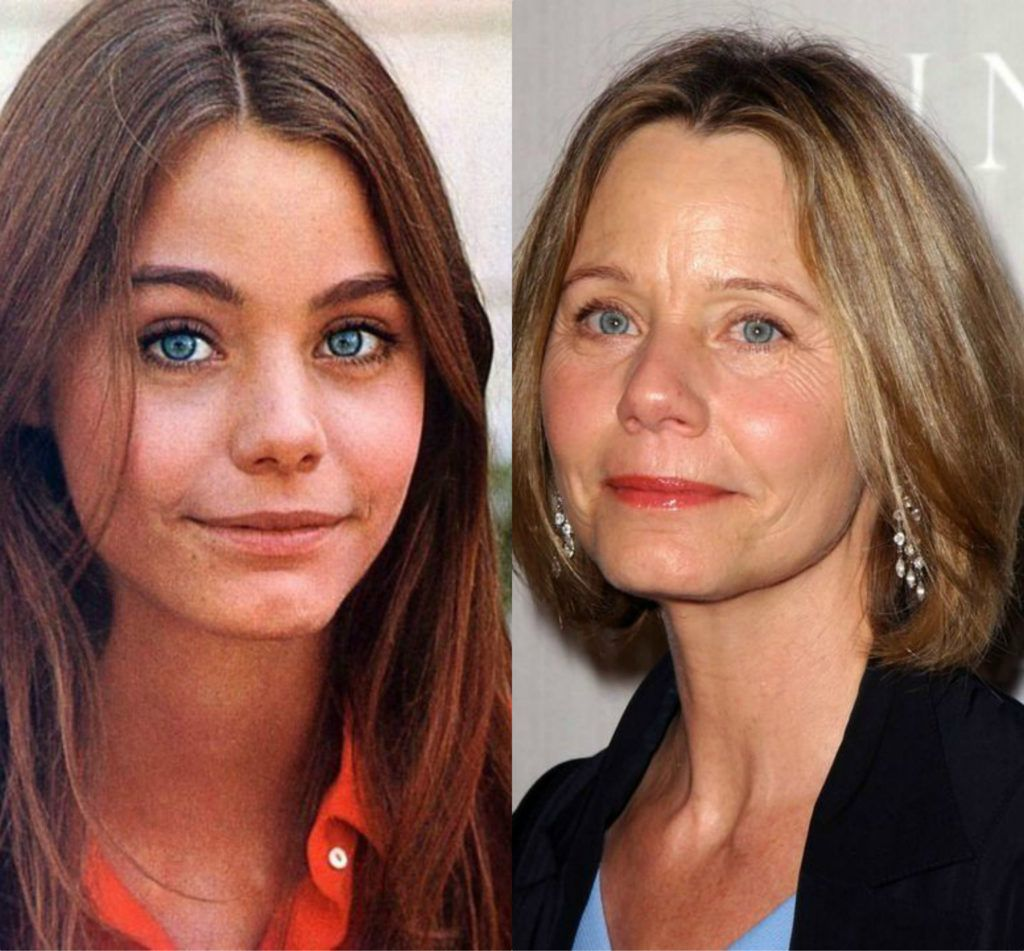 Then & Now photo of The Partridge Family star Susan Dey