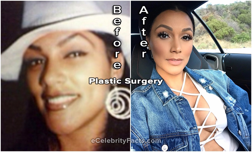Shantel Jackson before and after plastic surgery photos