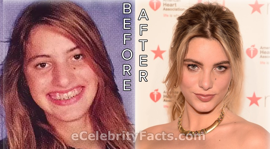 Lele Pons's pictures before and after plastic surgery. She has admitted to undergoing nose job.
