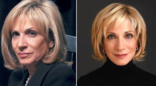 Andrea Mitchell's pictures before and after face surgery. She has been guessed to have undergone facelift.