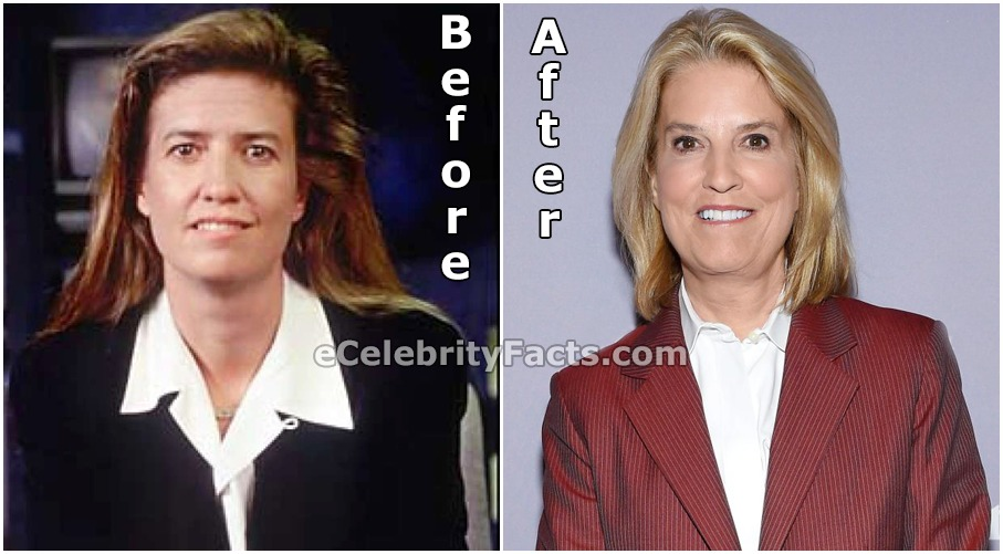 Greta Van Susteren's face before and after plastic surgery