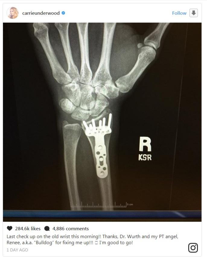 Carrie Underwood sharing a picture of her wrist X-ray on her official Instagram account on Friday.