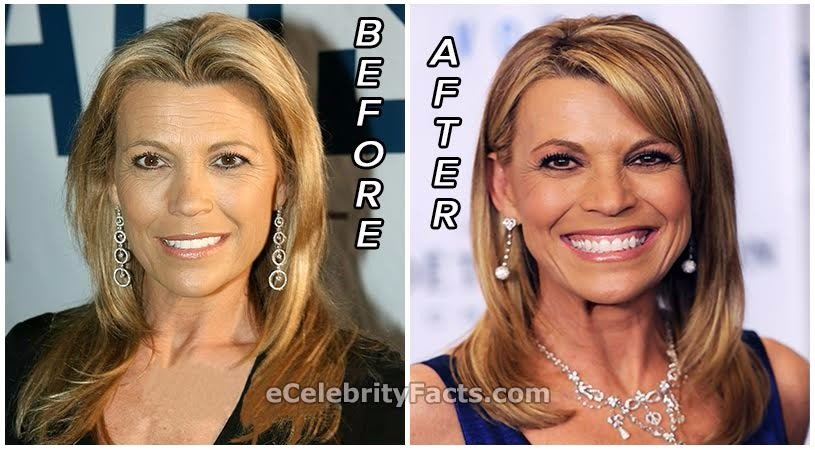 Pictures of Vanna White then and now. Vanna White reportedly had a plastic surgery to look young.