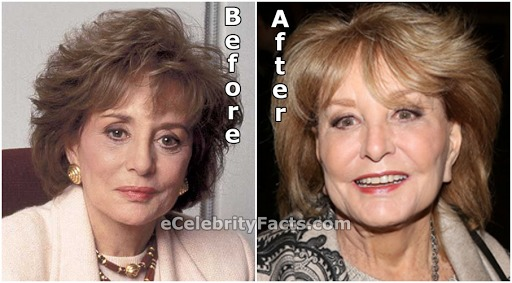Barbara Walters pictures before and after her plastic surgery.