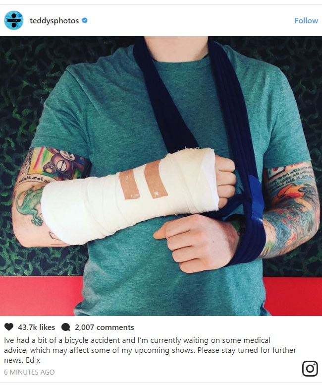 Ed Sheeran confirms his accident on Instagram