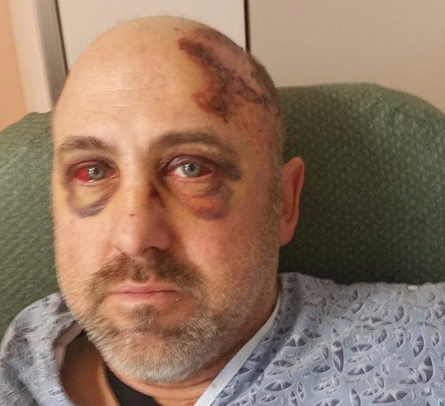 Duane Mayer's scared face after the accident. He looks horrible with injuries all over him.